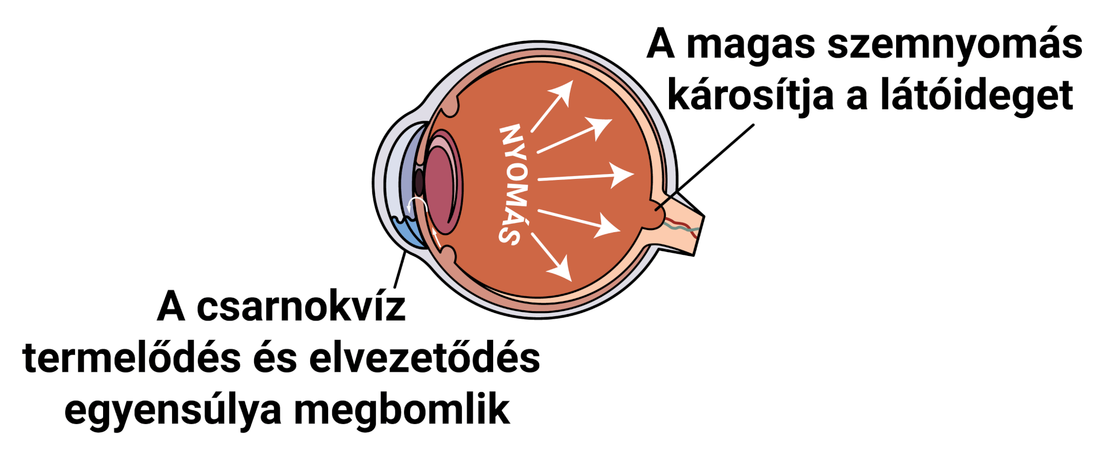 magas vérnyomás kezelése glaukómában