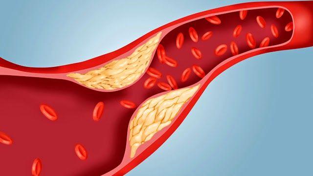 hogyan lehet megtisztítani az ereket a magas vérnyomástól)