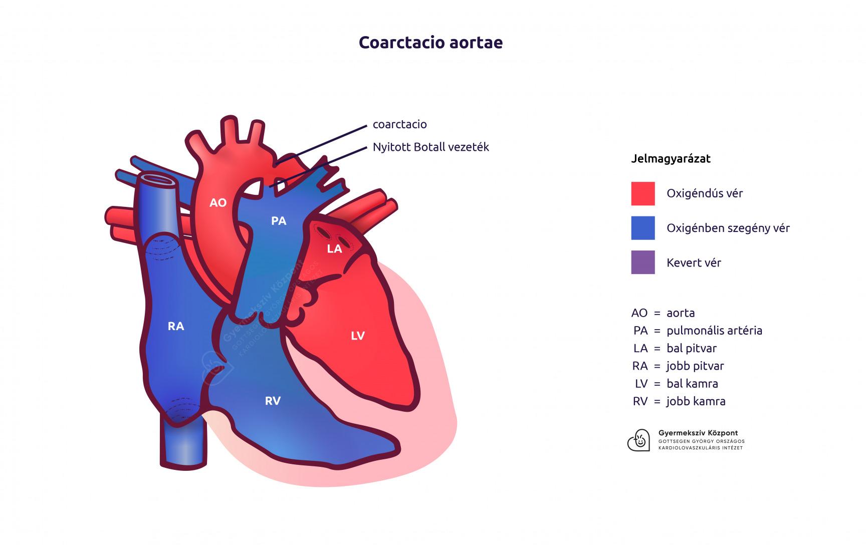 kezelési taktikák enyhe magas vérnyomás esetén a karok és a lábak remegése magas vérnyomásban
