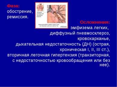 Tüdő betegségei és tünetei, Pulmonális artériás hipertónia
