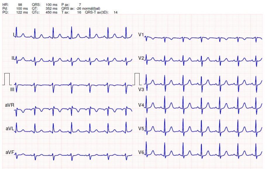 EKG a magas vérnyomás következtetésére
