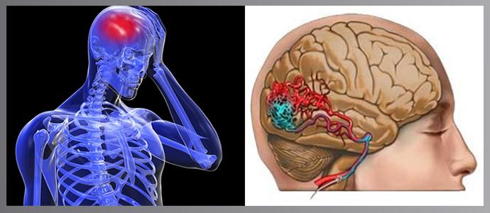 koponyaűri magas vérnyomás szindróma)