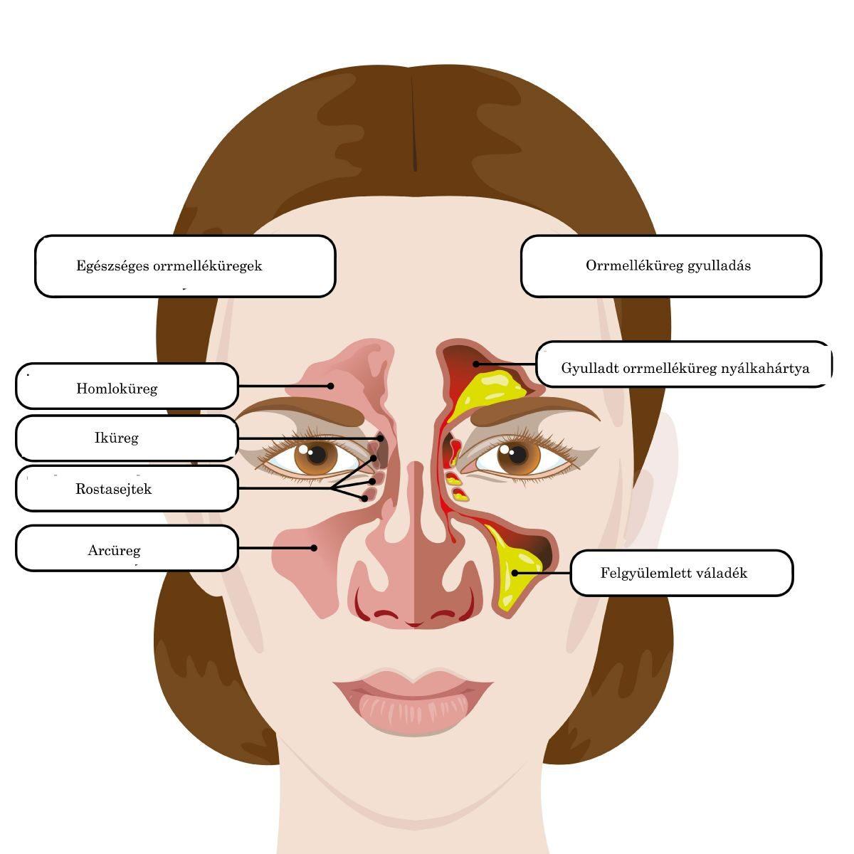 magas vérnyomás és arcüreggyulladás