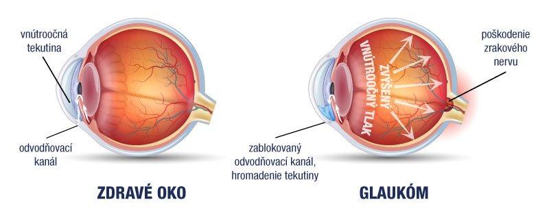 magas vérnyomás kezelése glaukómában)