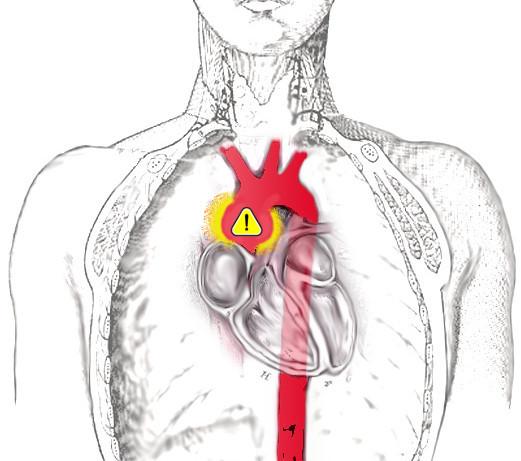 magas vérnyomásban szenvedő sportolók nátrium-tioszulfát és magas vérnyomás