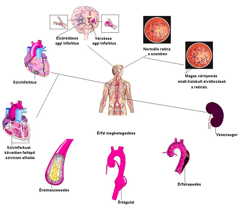 a stroke magas vérnyomás-szövődményei)