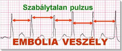 Magas vérnyomás és pitvari extrasystole - Szív- és érrendszeri betegségek