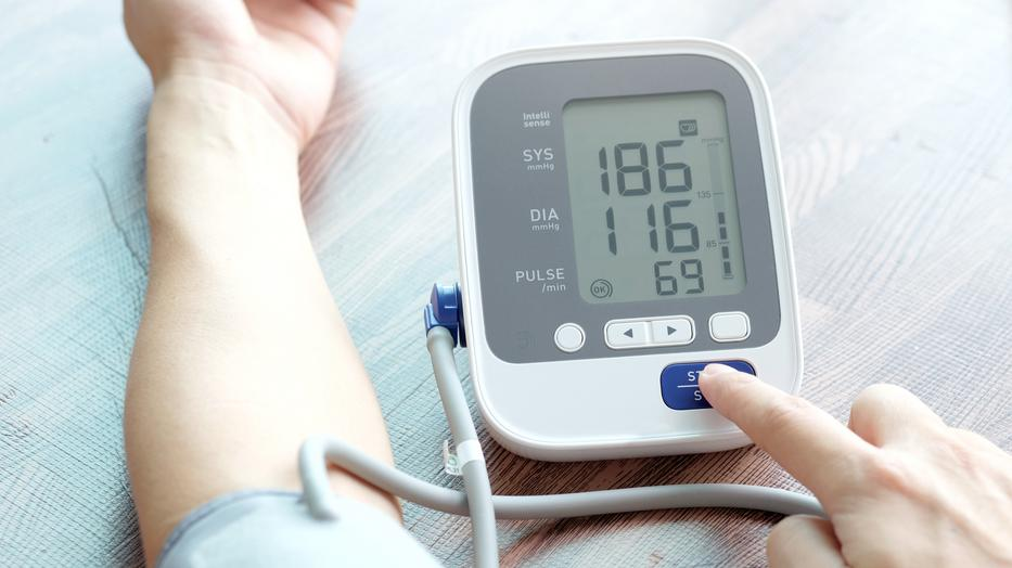 3 fokos magas vérnyomás korlátozásai)