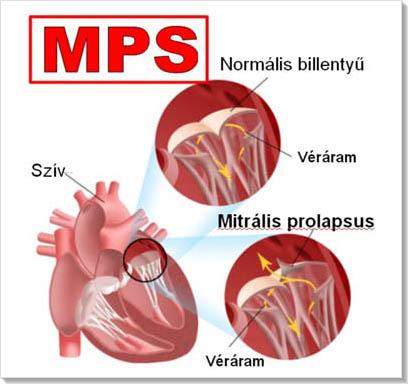 Mitralis prolapsus, magas vényomás, stressz - Szív- és érrendszeri betegségek