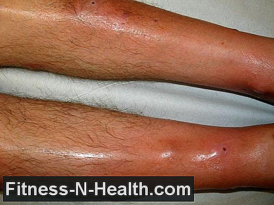 Határvonal magas vérnyomás - Vasculitis