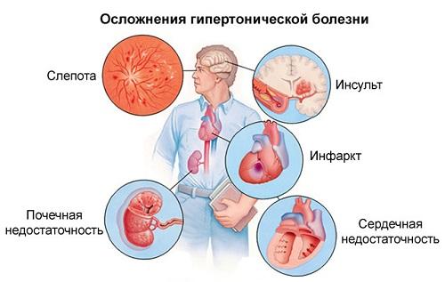 hipertónia 1 statisztikák járóbeteg magas vérnyomás kezelés