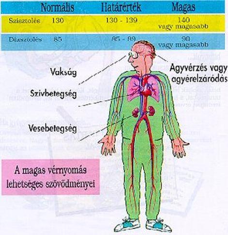 menü hipertónia diétájához lehetséges-e a magas vérnyomásban szenvedő Cahorsnak