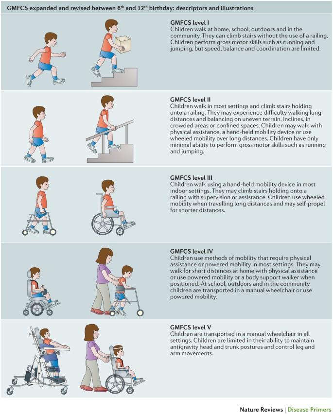 2 hipertónia a mozgósításnál