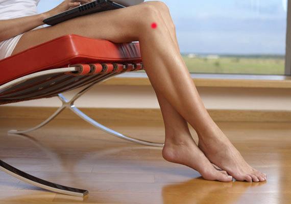 magas vérnyomás a lábakban