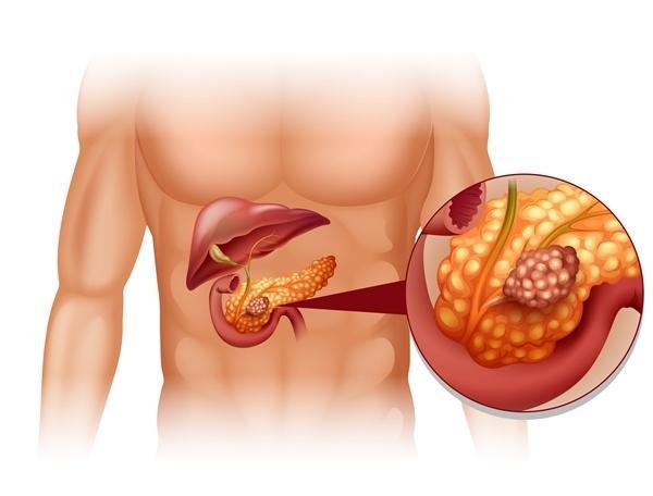 hatékony alacsony költségű gyógyszerek magas vérnyomás ellen A Sydnopharm magas vérnyomás kezelésére