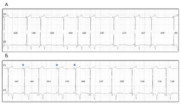 bradycardia tachycardia hipertónia hipotenzió)