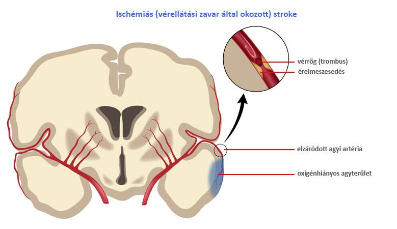 az iszkémiás stroke utáni magas vérnyomás kezelése)