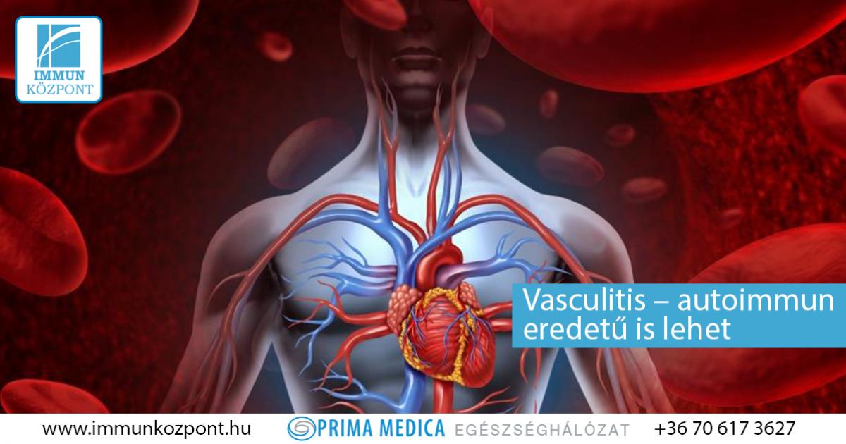 A magas vérnyomás megelőzése - Vasculitis