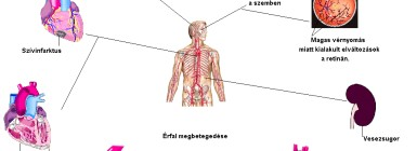 a magas vérnyomás oka és következményei)
