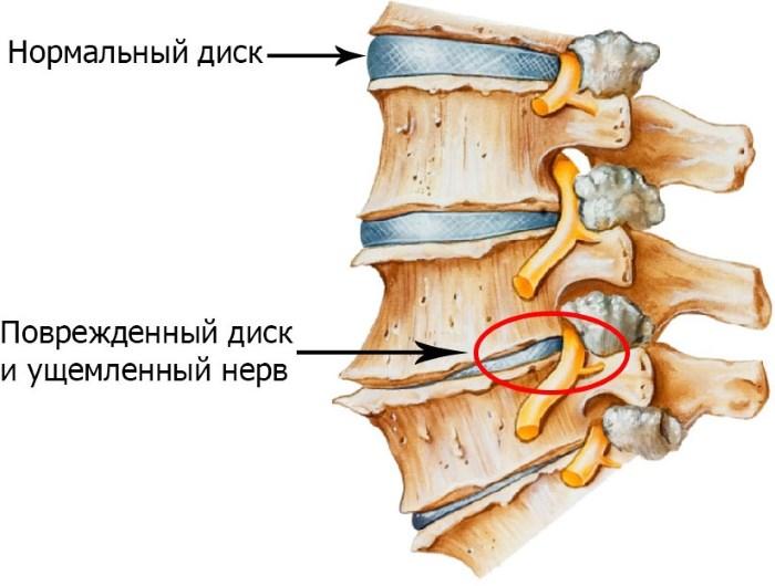 renovaszkuláris hipertónia mi hipertónia adrenerg blokkolóiban
