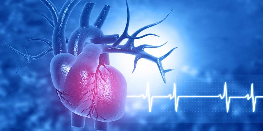 Ischaemiás szívbetegség