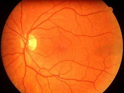 magas vérnyomás és a szem angiopathiája)
