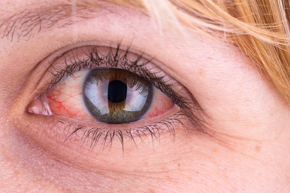 duzzanat a szem alatt magas vérnyomás