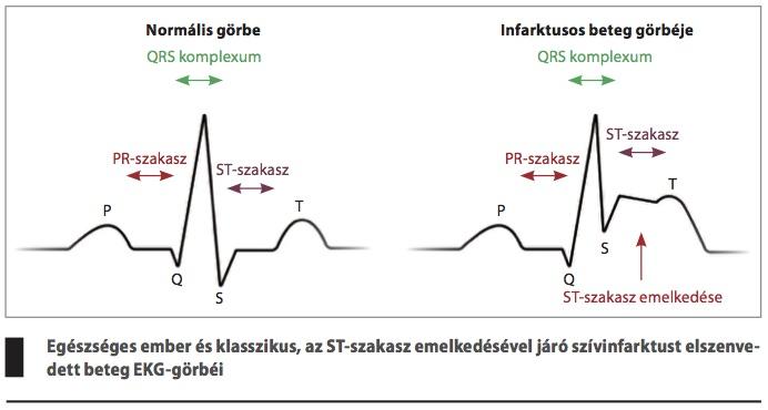 a magas vérnyomás jellegzetes jelei)