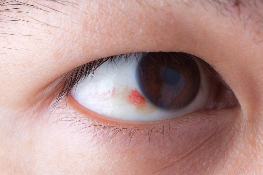 magas vérnyomás hatása a szemre magas vérnyomás 3 fok hogyan adható ki fogyatékosság