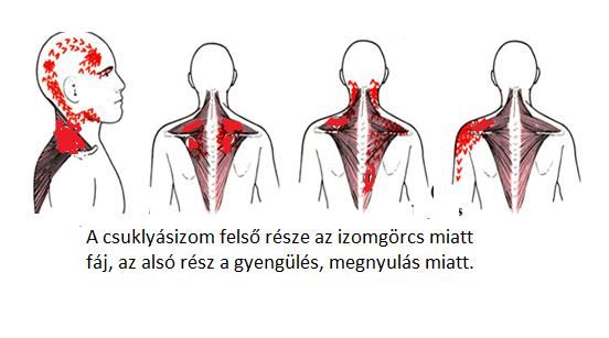 miért fáj a hátsó feje magas vérnyomásban)