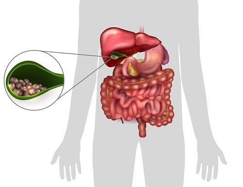epekő betegség és magas vérnyomás)