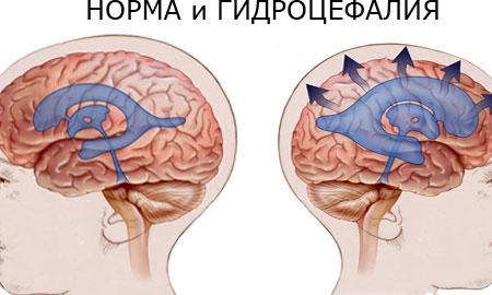 hipertóniás hydrocephalus)