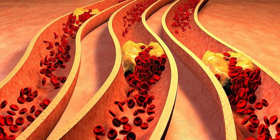 Melyek a szív- és érrendszeri betegségek legfőbb rizikófaktorai?