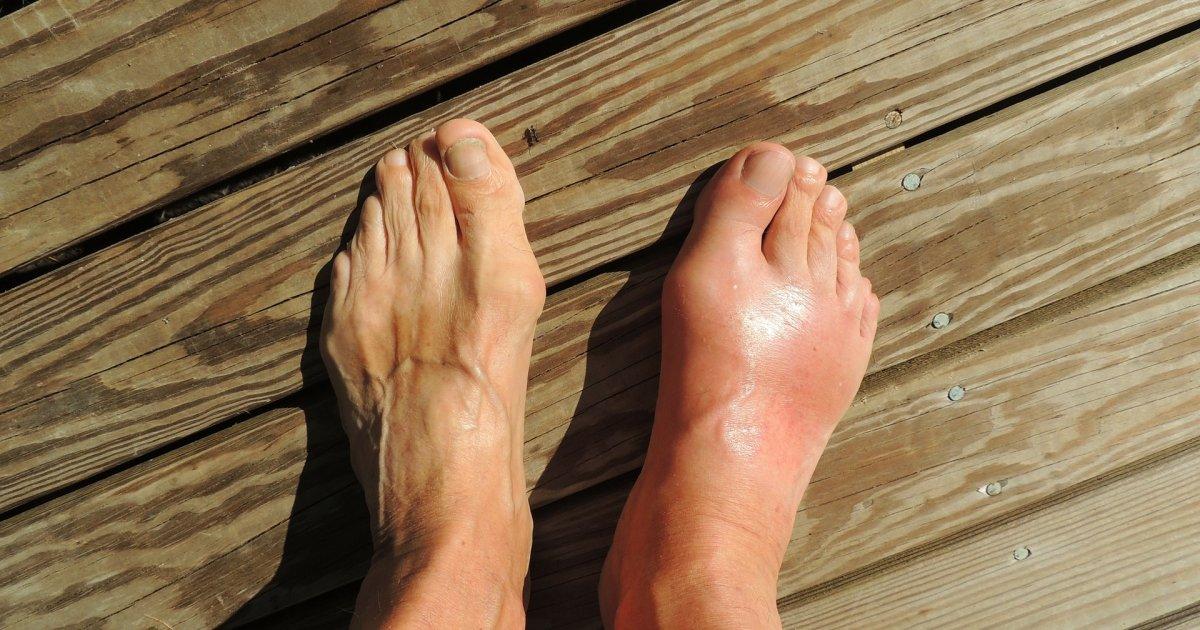 Magas vérnyomás is állhat a folytonos lábdagadás hátterében - rezcsoinfo.hu