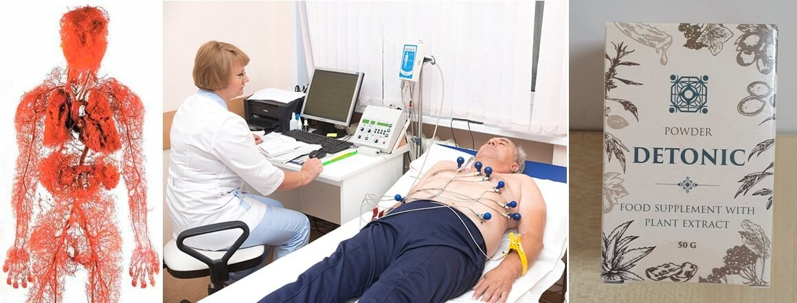 modern gyógyszerek magas vérnyomás ellen vízhajtó hatással)