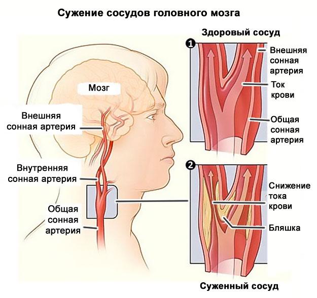 a magas vérnyomás és a nyaki osteochondrosis közötti kapcsolat)
