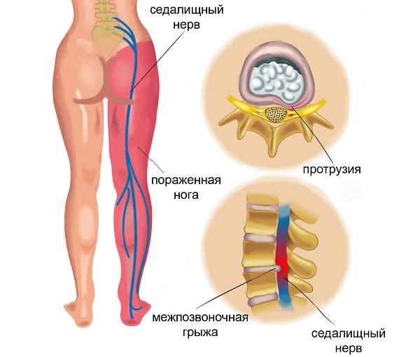 videomasszázs hipertónia akupresszúrához