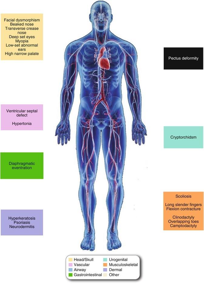 Isolalt systolés hypertonia