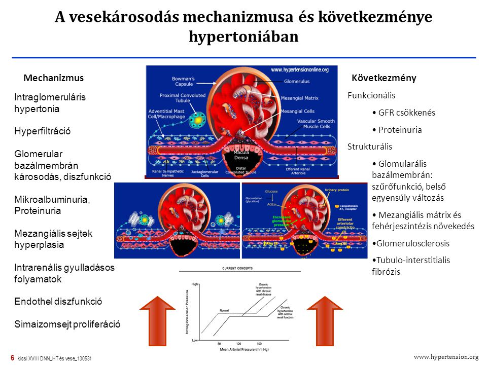 vese hipertónia előfordulási mechanizmusa)