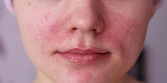 az arc bőrpírja és magas vérnyomás
