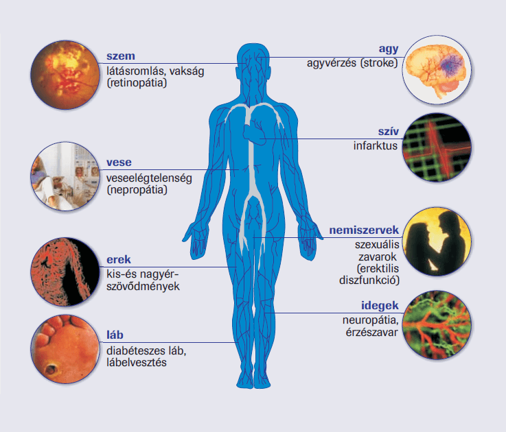 2-es típusú cukorbetegség és magas vérnyomás magas vérnyomás tüdőgyulladás