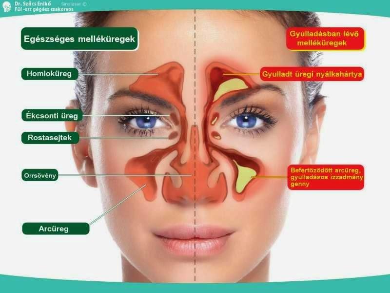 Arcüreggyulladás (orrmelléküreg-gyulladás) tünetei és kezelése