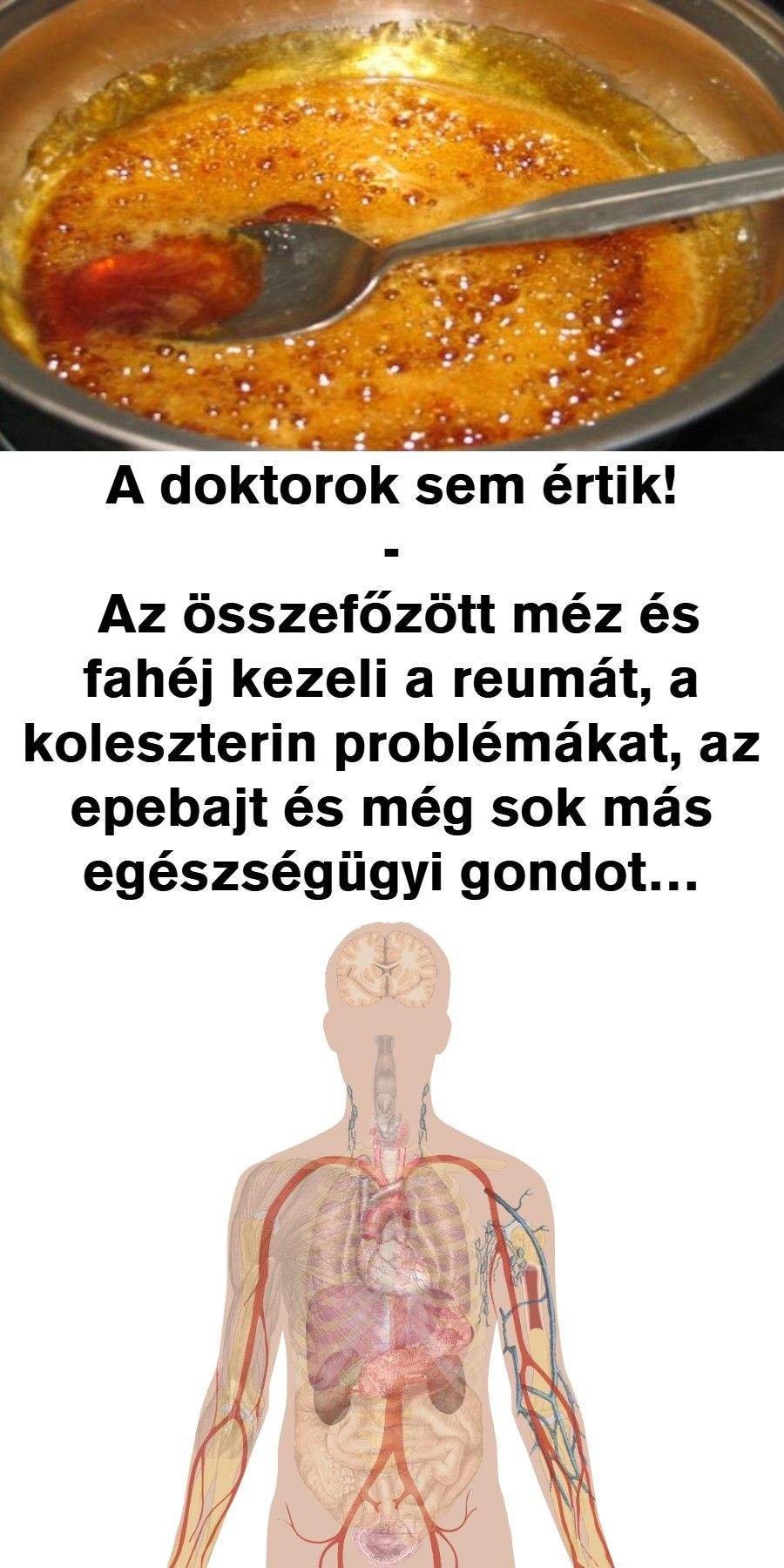 egészségügyi magas vérnyomás 1 fok)