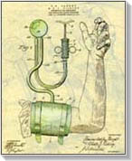 vizeletvizsgálat a 2 fokozatú magas vérnyomás esetén
