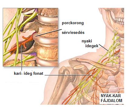Nyomás ugrások a nyaki osteochondrosisban: okok, elsősegélynyújtás, kezelés - Masszázs -