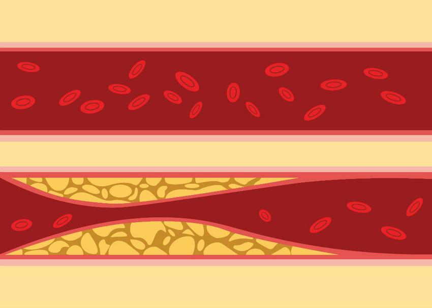 a mustár előnyei a magas vérnyomás esetén