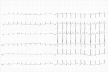 bradycardia tachycardia hipertónia hipotenzió