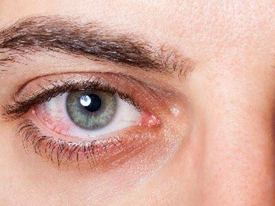 a szemek magas vérnyomásban szenvednek)
