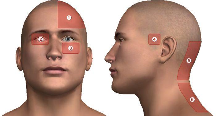 magas vérnyomás fejfájással