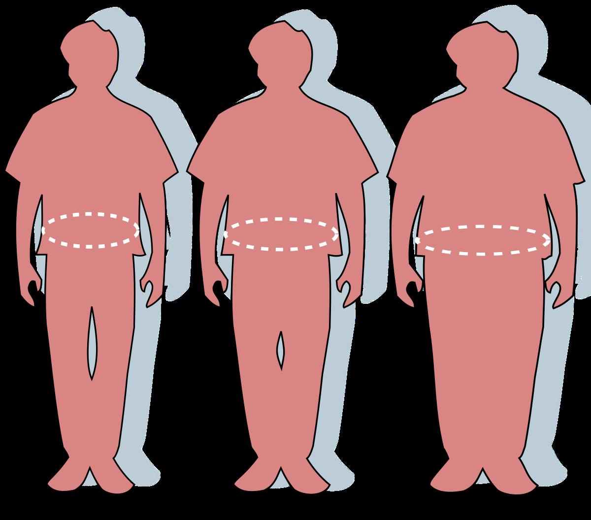 az elhízás magas vérnyomáshoz vezet